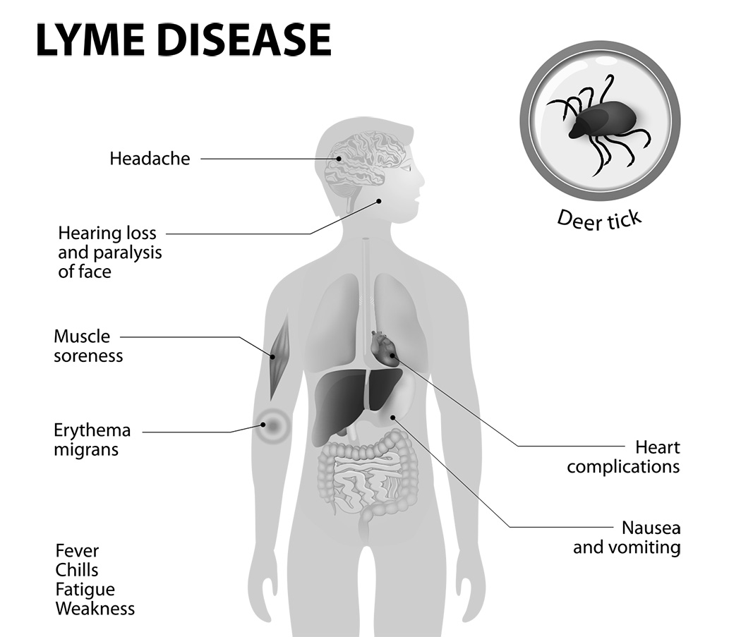 Dating with lyme disease